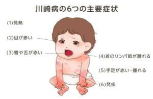 病 症状 川崎