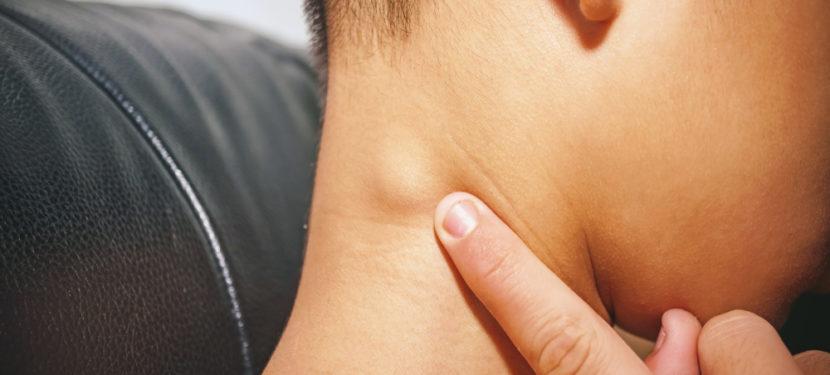 首の後ろのしこり、これって何?〜首のリンパ節の腫れとは