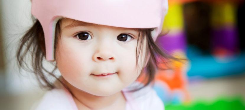 赤ちゃんの頭の形が気になったら? 〜頭の変形は専門医へ〜